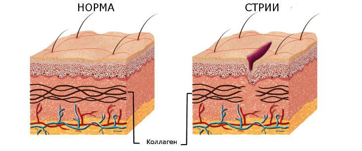 Причины появления растяжек (стрий) на коже