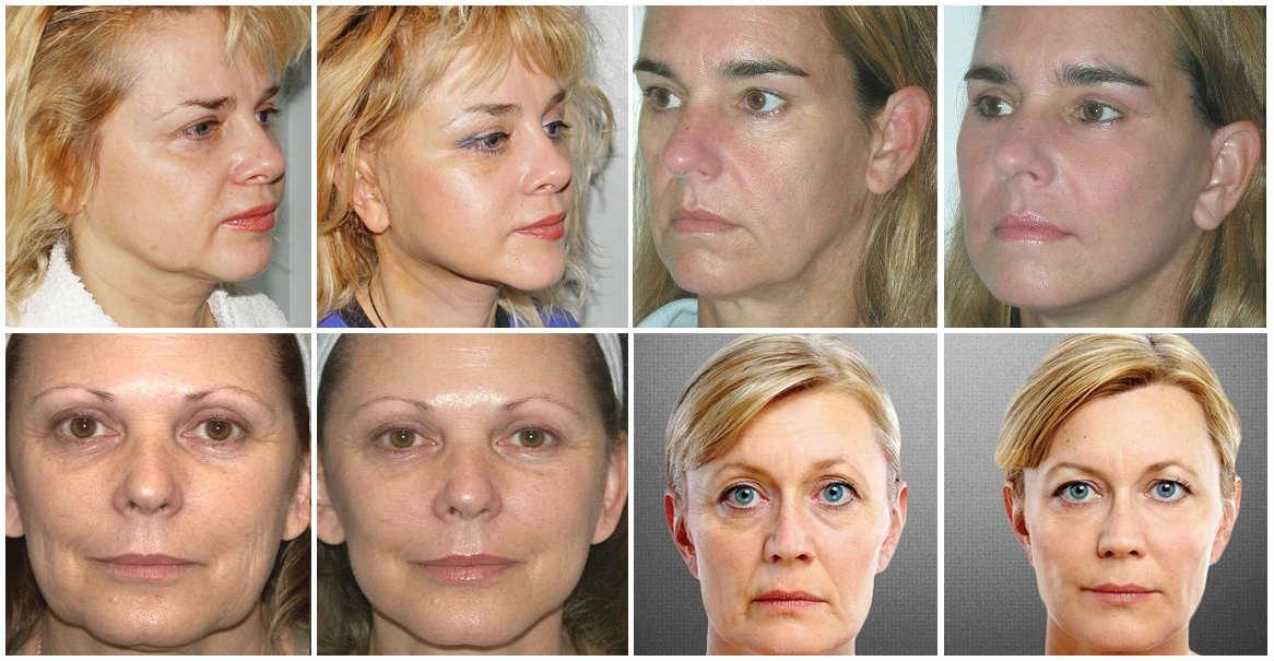 открытая прокладка восстановление фото убираем трещины на лицах нельзя делать